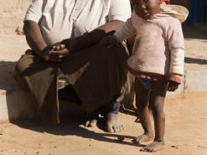 Bei Kindern in Afrika tritt starker Befall durch Sandflöhe nicht selten auf - Biteling