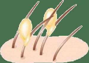 Kopfläuse kitten ihre Eier, die sogenannten Nissen, fest ans Haar - Alles über Kopfläuse